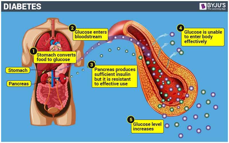 Diabetes Mellitus Condition